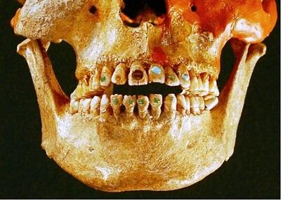 Археологи нашли странный череп с инструктированными зубами