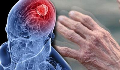 Ученые рассказали, какое поведение во сне указывает на болезнь Паркинсона