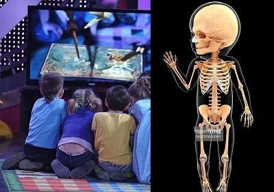 Телевизор разрушает кости детей
