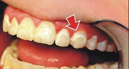 Почему иногда зубы разрушаются катастрофично быстро