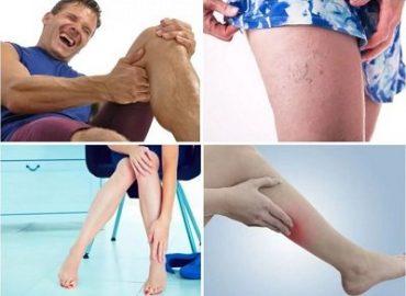 Варикоз на ногах — Лечение легким способом