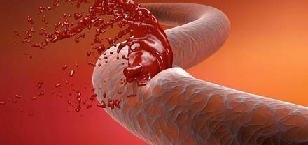 Как останавливать венозное кровотечение